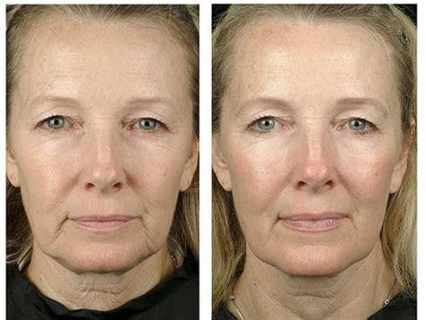 Radiofrecuencia Facial ⇒ Opiniones, Beneficios y ...
