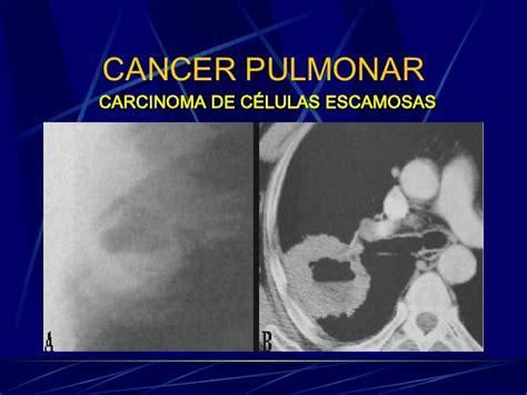 Radiología del cáncer y estudio por imagen de un nódulo ...