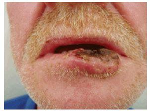 RBCP   Reconstrução do lábio inferior pela técnica de ...
