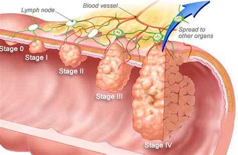 Rectal Bleeding and Bleeding from the Rectum   Causes and ...