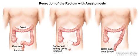 Rectal Cancer   HOA   Hematology Oncology Associates of CNY