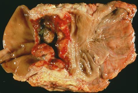Rectal Cancer Photograph by Cnri/science Photo Library