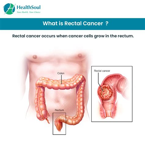 Rectal Cancer – Don t ignore the early signs ...