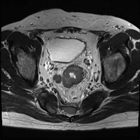 Rectal tumor  T3    Image   Radiopaedia.org