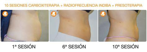Reducir la grasa corporal: plan de choque 3x1   Medicina ...