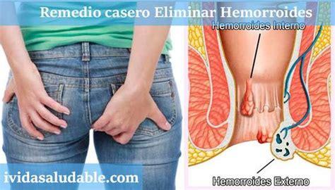 remedio casero eliminar hemorroides