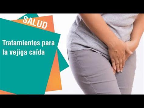 Remedio Casero para Quitar las Verrugas  METVC    FunnyCat.TV