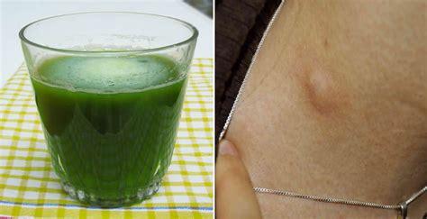 Remedio caseros para ganglios inflamados