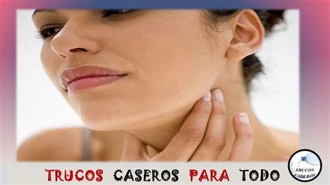Remedios caseros para glandulas inflamadas en cuello y ...