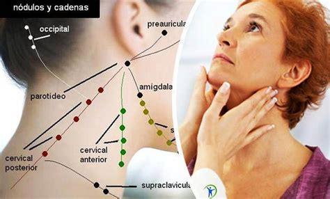 remedios caseros para los ganglios inflamados en el cuello ...
