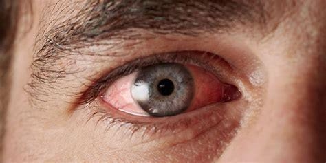 Remedios caseros rápidos para el ojo rojo   American ...