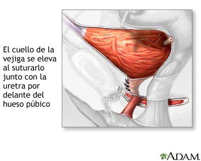 Reparación quirúrgica de la uretra y la vejiga   Serie ...