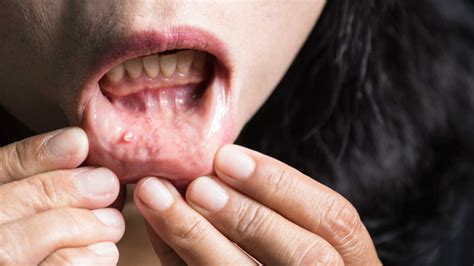 Researchers develop new method for identifying oral cancer