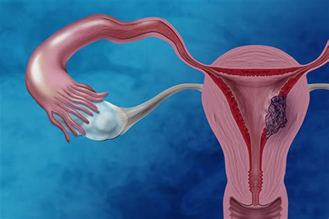 Researchers identify mutations in clear cell endometrial ...