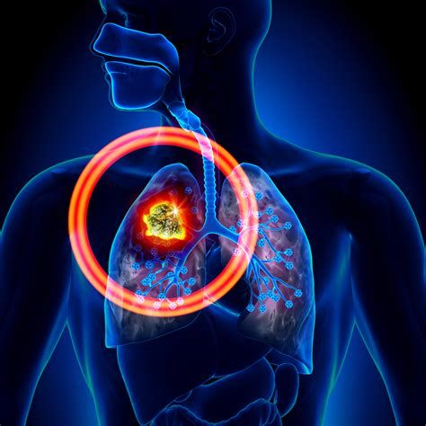 Researchers Recommend Additional PET/CT Scans in Lung ...