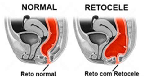 Retocele: definição, causas, sinais e sintomas ...