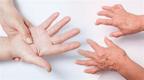 Rheumatoid Arthritis and Cancer: What s the Connection?