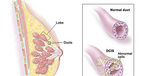 Risk of Breast Cancer Death is Low After DCIS Diagnosis ...