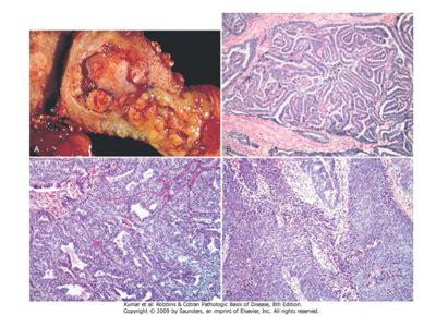 Rocio Magali Gonzalez: Carcinoma de endometrio