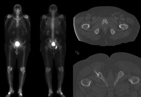 Roentgen Ray Reader: Osteolytic Lesions in Prostate Cancer
