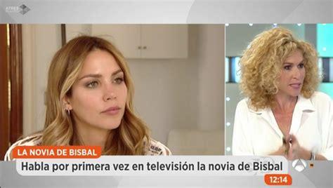 Rosanna Zanetti desvela las secuelas que sufrió después de ...