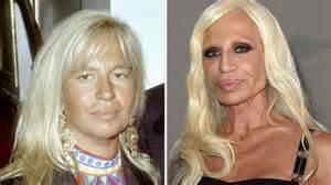 Rostros de las estrellas antes y después de las cirugía ...