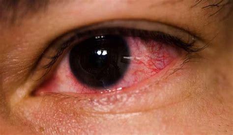 ¿Sabes a qué se Deben los Ojos Rojos? ¡Sal de dudas!