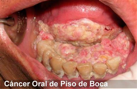 SACA LA LENGUA, Previene el Cáncer Oral   webdental.cl ...