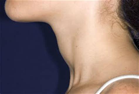 Salivary Gland Cancer Info: Thyroid Cancer Symptoms