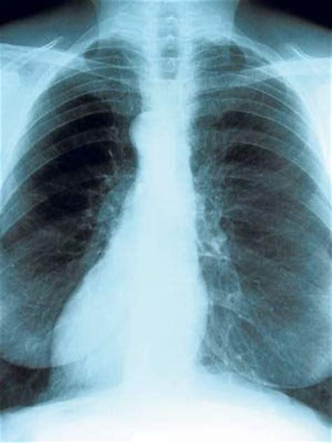 SALUD: Cáncer de pulmón