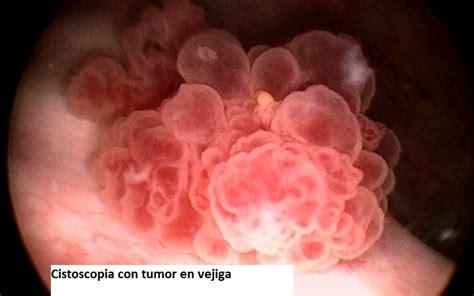 Sangre en la orina Tratamiento y Causas   DrenLinea