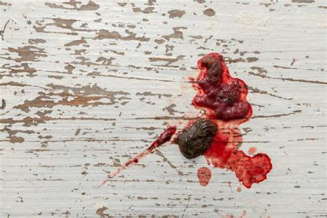 Sangre en las heces del perro   Causas principales