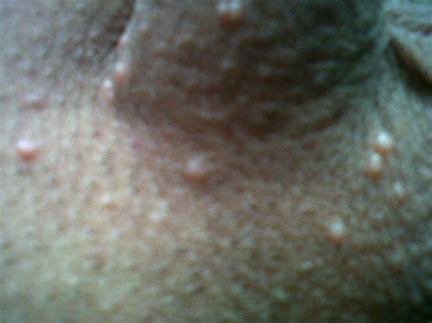 SAPU Dr. Juan Solorzano: 10_11