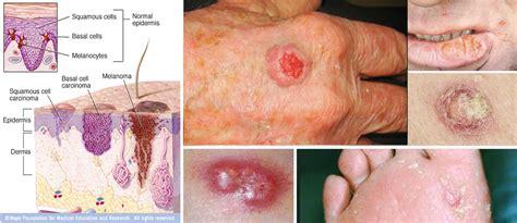 scc cancers   pictures, photos