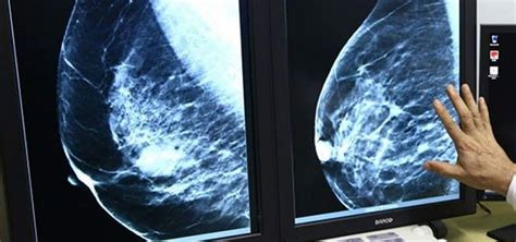 Se cura por primera vez un cáncer de mama metastásico