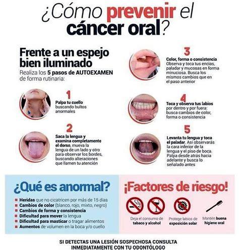 ¿Se puede autodiagnosticar el cáncer oral?   Clínica ...