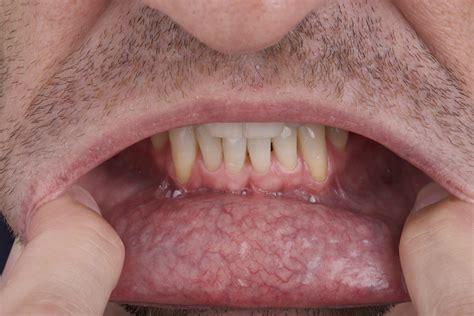 Self Oral Cancer Screening  SOCS  Education Program ...