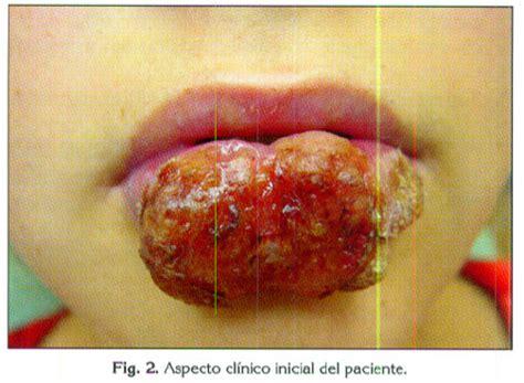 semiologia quirurgica: EXAMEN DE LA CABEZA Y CUELLO
