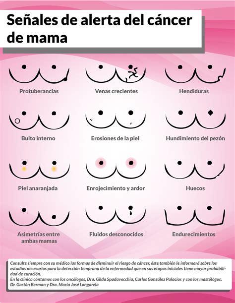 Señales de alerta de cáncer de mama – Clinica Privada del ...