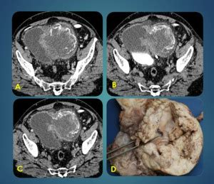 SERAM 2014 / S 0666 / Patología no tumoral de vejiga ...