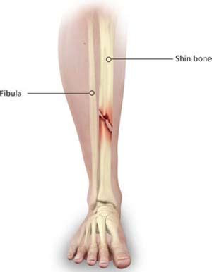 Shinbone Fractures Treatment West Bloomfield, MI | Tibia ...