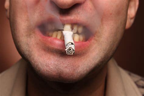 Siete factores de riesgo para el cáncer de boca