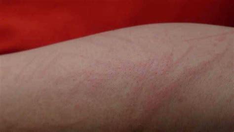 Sífilis: la enfermedad cuyos síntomas pasan desapercibidos ...