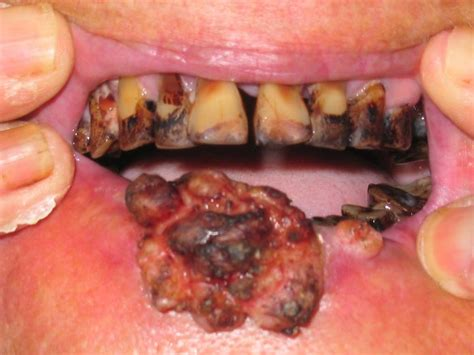 Significant Trends in Global Oral Health and Oral Cancer