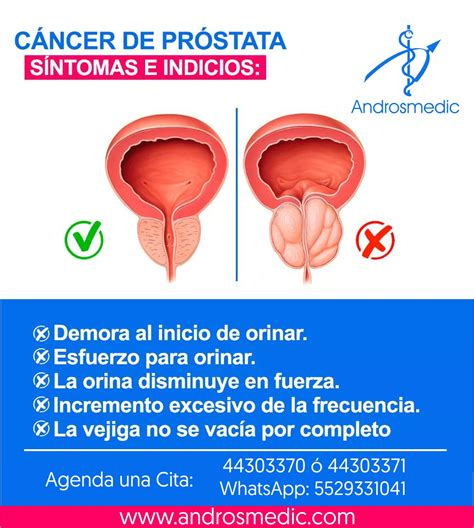 Signos y síntomas del cáncer de próstata   ANDROSMEDIC