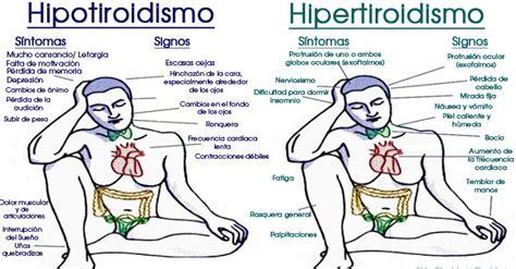 Signos Y Síntomas Del Hipotiroidismo E Hipertiroidismo