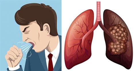 Síntomas cáncer de pulmón ⊛ ¡Prevención y Tratamiento 2019!