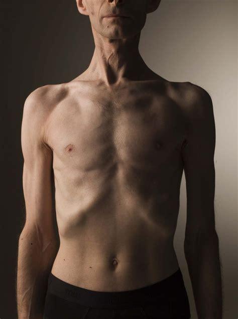 Síntomas de cáncer de colon: Definición, tipos, causas y ...