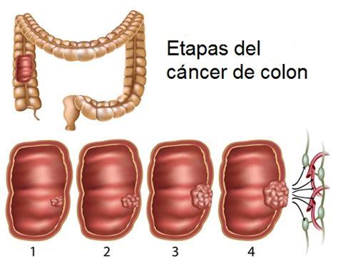 Síntomas de cáncer de colon que no debes ignorar