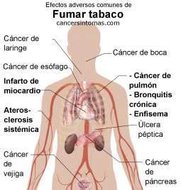 Síntomas de cáncer de pulmón  pulmonar : primeros ...